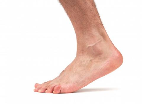 Heel Pain Relieved with Acupuncture!
