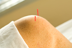 Acupuncture Drug Free Option To Treating RA