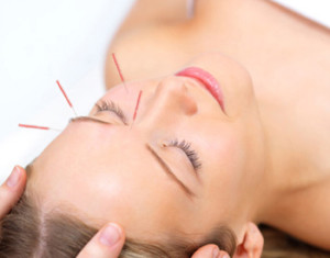 Acupuncture for Allergy Relief
