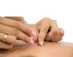 Acupuncture for Amenorrhea