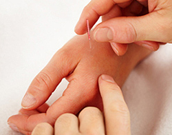 Acupuncture for Arm Numbness - Wilton, CT