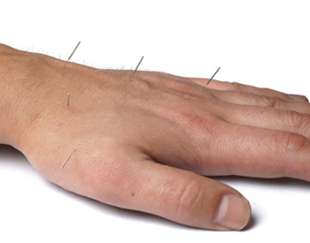 Acupuncture for Arthritis - Fairfield, CT