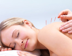 Acupuncture for Back Pain - Fairfield, CT