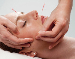 Acupuncture for Bell's Palsy - Bethel, CT