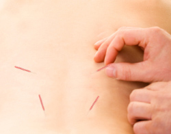 Acupuncture for Chronic Fatigue - Fairfield, CT