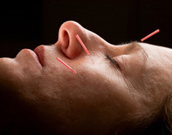 Acupuncture for Cold Relief - Fairfield, CT