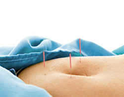 Acupuncture for Diarrhea - Fairfield, CT