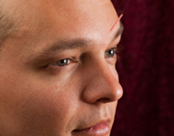 Acupuncture of Eye Problems - Fairfield, CT