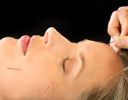 Acupuncture for Facial Pain - Fairfield, CT