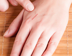 Acupuncture for Finger Pain - Fairfield, CT