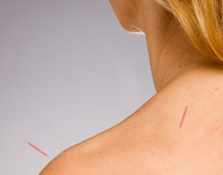 Acupuncture for Frozen Shoulder - Fairfield, CT