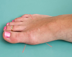 Acupuncture for Gout - Fairfield, CT