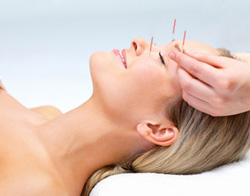 Acupuncture for Headaches - Fairfield, CT