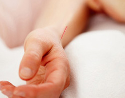 Acupuncture for Joint Pain -- Fairfield, CT