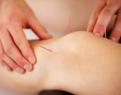 Acupuncture for Joint Stiffness - Wilton, CT