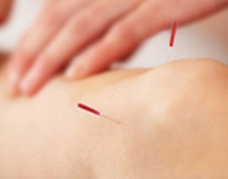 Acupuncture-for-Knee-Pain -- Bethel, CT