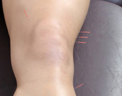 Acupuncture for Leg Pain - Fairfield, CT