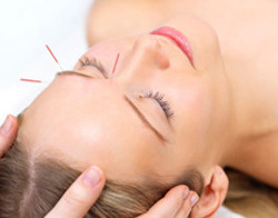Acupuncture for Migraines - Fairfield, CT