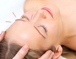 Acupuncture for Migraines - Fairfield, CT
