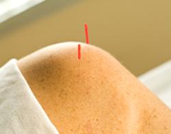 Acupuncture for Rheumatoid Arthritis - Fairfield, CT