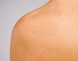 Acupuncture for Rotator Cuff Problems - Bethel, CT