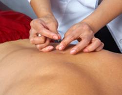 Acupuncture for Sciatica - Fairfield, CT