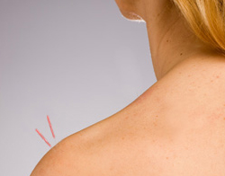 symptoms-shoulder-pain2