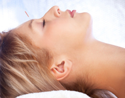 Acupuncture for Sinusitis Relief - Fairfield, CT
