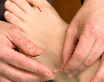 Acupuncture for Tendonitis - Fairfield, CT