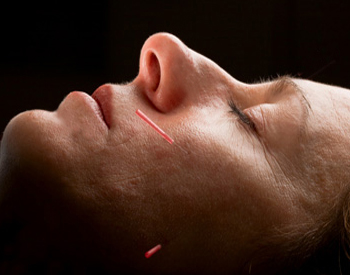 Acupuncture for TMJ Relief - Fairfield, CT