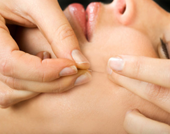 Acupuncture for Tooth Pain - Fairfield, CT