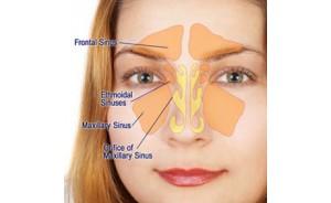 Nasal Vowels | Dialect Blog |Sutra Neti Sinus Cavity Diagram