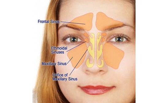 Blow the Horns! Acupuncture Eases Sinus Pain | CT Acupuncture Center